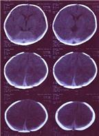 Trẻ thiếu vitamin K rất dễ xuất huyết não