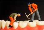 Răng sữa bị nhức, có nên lấy tủy?