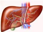 Tại sao bị mắc bệnh sán lá gan lớn?