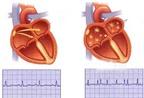 Dùng thuốc điều trị rối loạn nhịp tim nhóm III: Các khuyến cáo đặc biệt