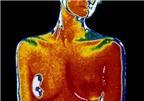 Phát hiện protein giúp chống ung thư vú