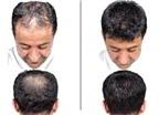 Bổ sung dinh dưỡng cho tóc mỗi ngày