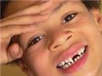 Nhổ răng sữa có bị sót chân răng?