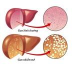 Gan nhiễm mỡ - Phải chặn từ gốc