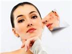 AloBacsi ơi, chăm sóc da thế nào để ngăn mụn tái phát?
