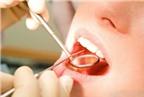 Cách làm bong mảng bám răng, vôi răng từ vỏ chanh, giấm