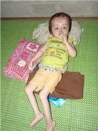 Cháu bé 10 năm chống chọi bệnh não úng thủy sống