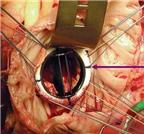 Phòng bệnh van hai lá do thấp tim