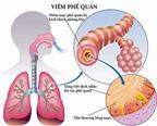 Chăm sóc trẻ bị viêm phế quản phổi