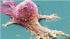 Phát hiện loại gen dẫn đến ung thư buồng trứng