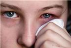 Cách chăm sóc khi bị đau mắt đỏ, AloBacsi ơi?
