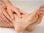 Lòng bàn chân mọc mụn nước, là bệnh gì?