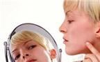 Bị sẹo lồi sau tẩy nốt ruồi, chữa làm sao BS ơi?