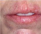 Hạn chế viêm môi do dị ứng
