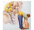 Hay đau thắt lưng khi khom người là bệnh gì?