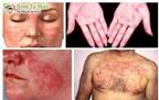 MM - Từ chống thải ghép tạng đến điều trị bệnh khớp tự miễn