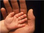 Những bệnh di truyền từ cha mẹ sang con cái