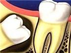 Làm sao nhận biết răng mọc ngầm, thưa BS?