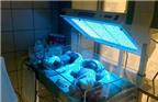 Vàng da ở trẻ sơ sinh - Khi nào cần điều trị?