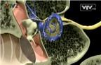 Cách nhận biết và xử trí viêm tai giữa