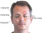 Thuốc điều trị viêm mũi xoang