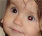 Cảnh báo dấu hiệu ung thư mắt ở trẻ em