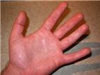 Cách sống chung với bệnh ra mồ hôi tay chân