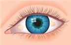 """AloBacsi ơi, """"mộng thịt"""" ở mắt nên điều trị thế nào?"""