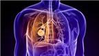 Bí quyết đơn giản phòng tránh ung thư phổi