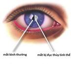 Những bệnh ở mắt có thể dẫn đến mù lòa