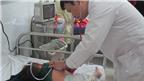 Cách nhận biết sớm và điều trị bệnh sởi