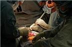 Người thấp khớp cấp dễ bị hẹp van tim