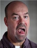 8 dấu hiệu nhận diện ung thư lưỡi