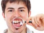 Răng không đều, chỉnh cách nào nhanh nhất?
