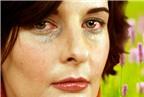 Nguyên nhân phổ biến gây dị ứng mắt
