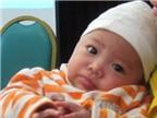 Phát hiện mới trong điều trị bệnh sởi ở trẻ em
