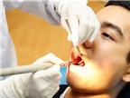 Nguyên nhân răng đau nhức dữ dội, sưng tấy sau đặt thuốc diệt tủy?
