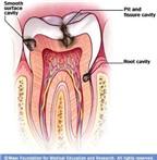 Triệu chứng viêm quanh răng