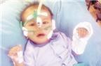 Sự sống mong manh của cháu bé mắc bệnh tim hiếm gặp