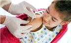 Việc tiêm chủng sẽ bảo vệ con bạn như thế nào?