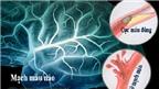 Thuốc dự phòng đột quỵ não tái phát