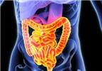 Thuốc giảm đau có thể gây bệnh đường ruột