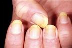 Nấm móng và cách điều trị