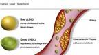 Cholesterol xấu có thể khiến ung thư di căn