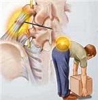 Khắc phục chứng đau thắt lưng