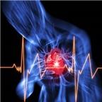 Dấu hiệu sớm của cơn đau tim