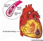 Phòng ngừa bệnh động mạch vành