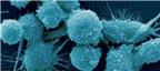 Phát hiện về cách phòng ngừa ung thư tuyến tiền liệt ở nam giới