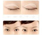 Ba phương pháp cải thiện mí mắt