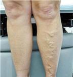 Cảm giác kiến bò dưới da, là bệnh gì?